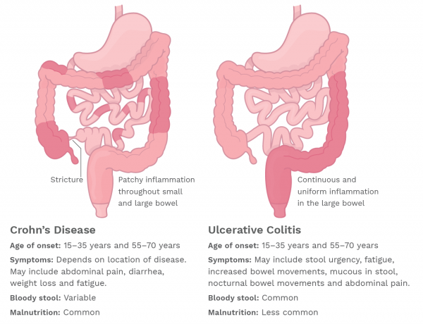 Crohn's Disease and Ulcerative Colitis